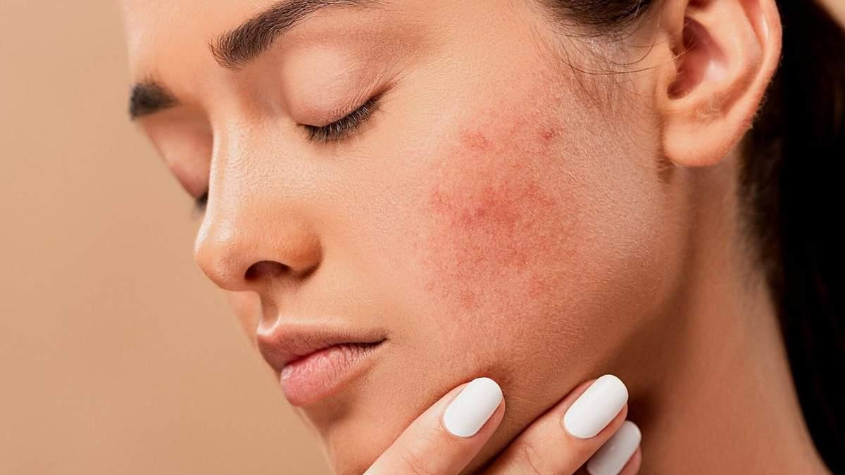 Як усунути дерматит