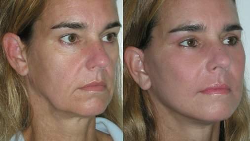 Гімнастика для обличчя: дієві способи усунення зморшок та темних кіл навколо очей