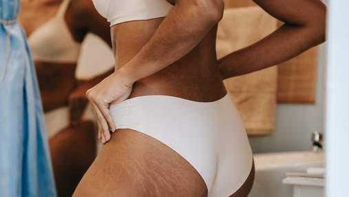 Профілактика розтяжок: 3 способи покращити еластичність шкіри