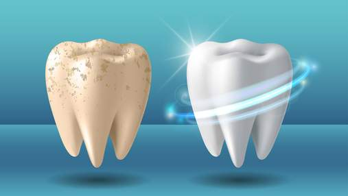 Що відбувається з зубами під час відбілювання, і наскільки це безпечно: відповідь стоматолога
